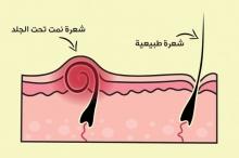 كيف تتجنب نمو الشعر تحت الجلد؟ إليك هذه الخطوات التي ...
