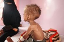 منظمة غير حكومية: اليمن على حافة المجاعة