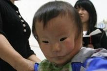 طفل صيني بوجهين يصدم الأطباء في حالة نادرة