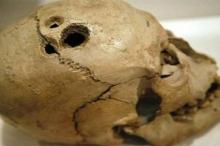 ما سر الثقوب الموجودة في جماجم أسلافنا القدماء ؟!