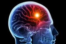 دواء موجود منذ 22 عاماً يعالج السكتات الدماغية لكن الأطباء ...