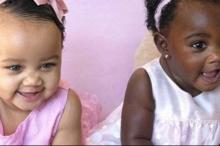 توأم مختلف في لون البشرة يثير إعجابا واسعا