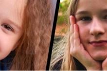 لماذا يختلف شكل الشعر بين مجعد ومستقيم بين الناس؟