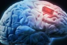 لأول مرة...يتمكن العلماء من تقوية ذاكرة الإنسان عبر أجهزة تزرع ...