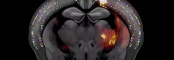 في إنجاز لا يقدّر بثمن.. فيديو ثلاثي الأبعاد لخريطة هائلة تكشف عن دماغ ...