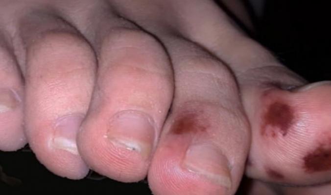 أعراض غير نمطية لفيروس كورونا.. راقب الكدمات على أصابع قدمك