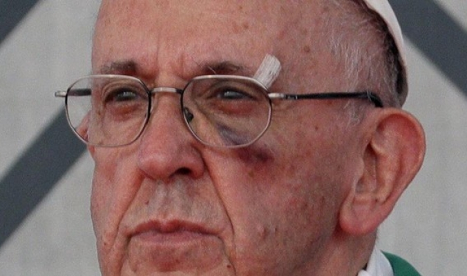 إصابة البابا بكدمة بعينه أثناء جولته في كولومبيا