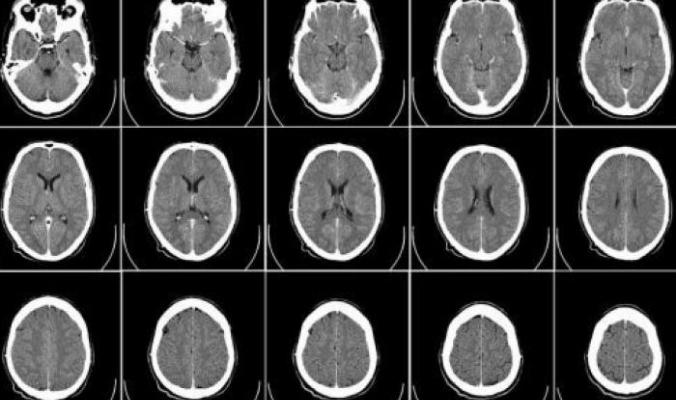 دراسة تاريخية قد تغير مقاربة الأطباء لعلاج السكتة الدماغية