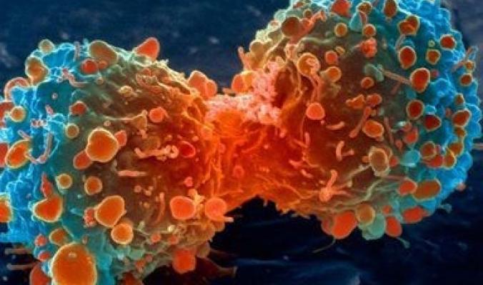 سبعة أشياء غريبة تزيد من خطر الإصابة بالسرطان