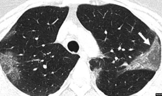 ما الذي يحدثه فيروس كورونا بجسم الإنسان؟