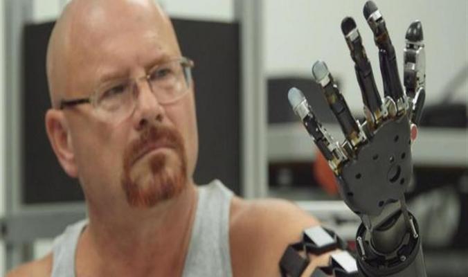 أول إنسان يتعايش مع ذراع روبوتية يتحكم بها بعقله