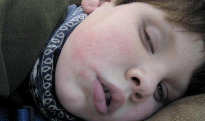 لماذا ينام البعض بأعين نصف مفتوحة؟