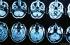 دراسة: تصوير هوليوود للموت الدماغي غير صحيح