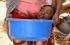 بالصور... الشابة رحمة تعيش في وعاء بلاستيكي بعد مرض شديد الندرة