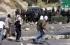 جيش الاحتلال يعتمد إحداث إعاقات في أقدام الفلسطينيين