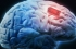 لأول مرة...يتمكن العلماء من تقوية ذاكرة الإنسان عبر أجهزة تزرع في الدماغ