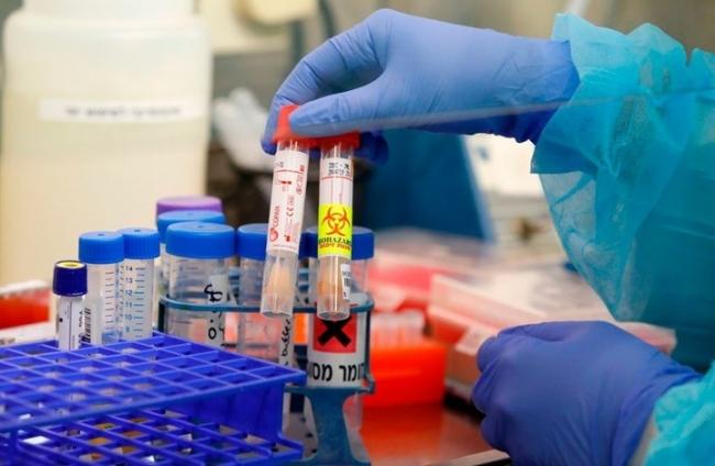 دماء الناجين من كورونا قد تساعد في العلاج.. كيف ذلك؟