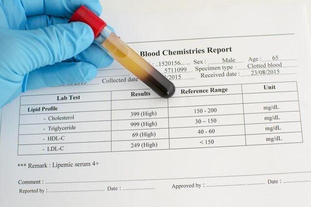 كيف تقرأ نتائج فحص الكوليسترول؟