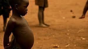 لماذا ينتفخ بطن الأطفال الذين يعانون من سوء التغذية؟