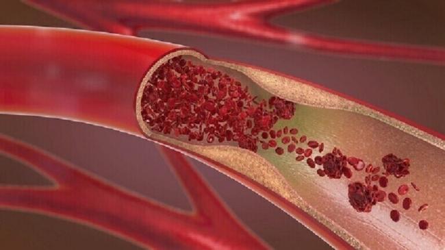 دعامات الأوعية الدموية أعظم إنجاز في مجال الطب