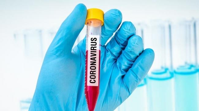 الاشتباه بإصابة 37 أردنياً وأجنبياً بفيروس كورونا في عمان