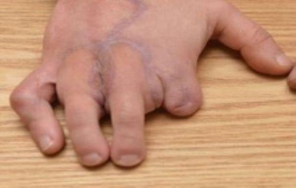 بالصور: شاب يستبدل أصابع يديه بأصابع قدميه