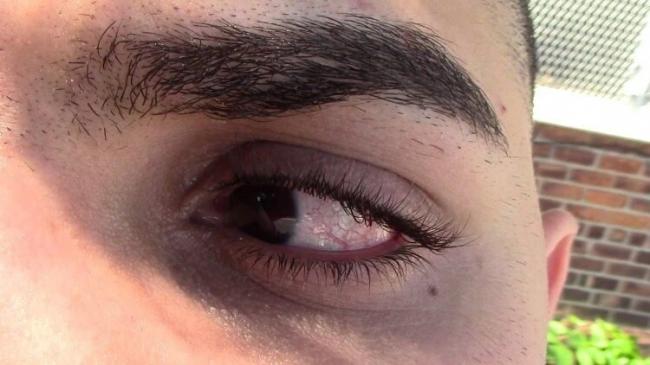 ما الذي يُسبب رفة العين ؟