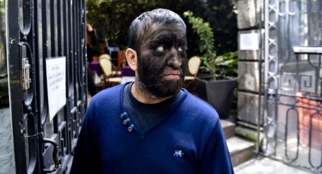 أطفال يتحولون إلى ذئاب بسبب مرض غريب في إسبانيا