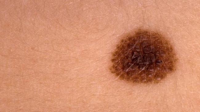 إذا رأيت هذه العلامات على جسدك.. اتصل بطبيبك فورا
