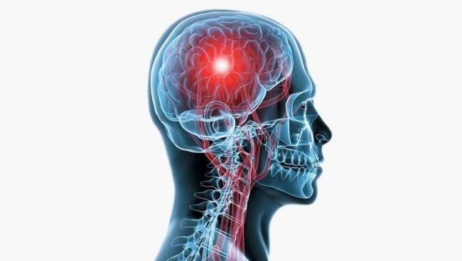 لماذا يصاب الشباب بالسكتة الدماغية؟