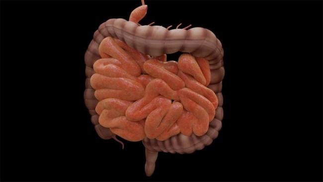 مرض يؤدي لانتفاخات مجوفة كالجيوب في جدار الأمعاء.. ما هو؟