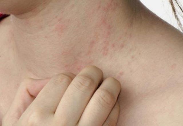 هذه العلامات إذا ظهرت لديك فهذا يعني أن جسدك مفخخ بالبكتيريا الضارة!
