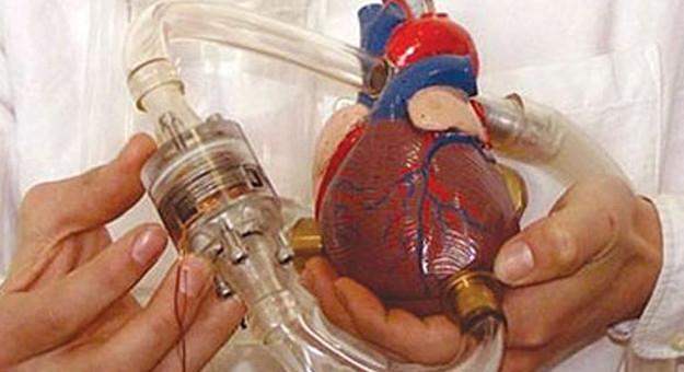 قلب صناعى يعمل ببطارية لإطالة حياة مرضى القلب