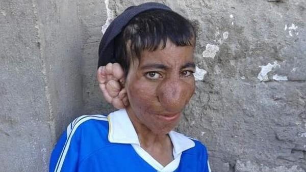 مرض وراثي نادر جعل هذا الشاب المصري بتلك الصورة