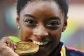 لماذا يعض أبطال الأولمبياد ميدالياتهم الذهبية؟ السبب علمي.. لكنه يخفى على معظم الرياضيين!