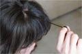 ما أسباب هوس نتف الشعر، وكيف يمكن التخلص منه؟
