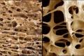 ايران: تحسين عملية ترميم العظام بأقل مضاعفات