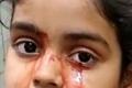فتاة تذرف دما بدل الدموع .. في حالة طبية نادرة