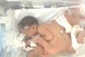 أول حالة على مستوى فلسطين... ولادة أول توأم سيامي في الخليل