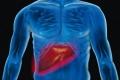 دهون الخصر تؤذي الكبد