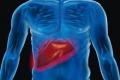 دهون الكبد.. أعراضها وأضرارها وطرق لحماية نفسك منها