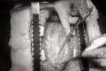 أغرب عملية جراحية في تاريخ الطب الحديث