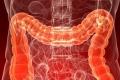 فضلاتك تحميك من الموت.. كيف تكتشف مبكراً احتمال الإصابة بسرطان القولون؟