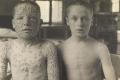 مناهضة اللقاحات: الحملة التي هزت إنجلترا في العصر الفيكتوري