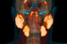 اكتشاف غدد جديدة في جسم الإنسان لم تكن معروفة (شاهد)