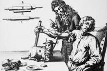 صدق أو لا تصدق.. نقل دماء خروف إلى إنسان في ...