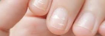 5 أسباب وراء ظهور علامات بيضاء على الأظافر أحدها حالة صحية خطيرة