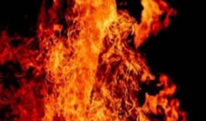 وفاة طفل بعد يوم من حرقه لنفسه في القطاع