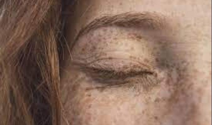 تظهر بعد الأربعين.. كيف يمكن تمييز بقع الشمس عن سرطان الجلد؟