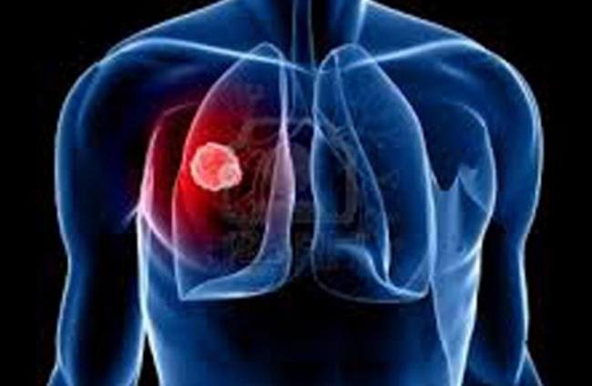 كيف تستطيع الكشف عن الإصابة بالسرطان في 10 دقائق فقط؟